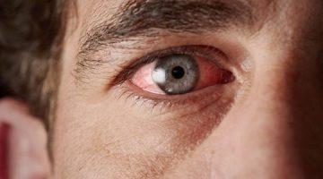 Göz Kanlanması: Hangi Hastalıkların Belirtisi Olabilir?