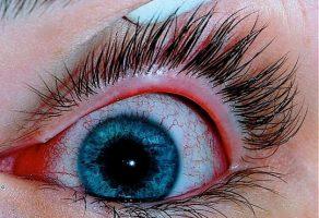 Göz Nezlesi (Konjonktivit) Belirtileri ve Tedavisi