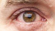 Gözyaşı Kanalı Tıkanıklığı Belirtileri ve Tedavisi