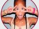 Çocukluk çağı Vitiligo'sunun yetişkinlere göre farkları nelerdir