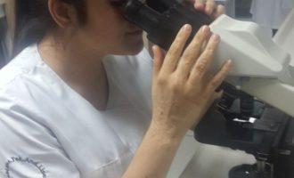 İdrarda Mantar (Candida, Aspergilloz) Hücresi Görülmesi Neden Olur ? & İdrarda Mantar Testi