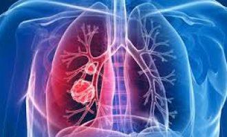 Akciğer Zarında Sıvı Birikmesi (Plörezi)