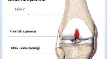 Diz Ekleminde Kireçlenme ( Diz Osteoartriti )