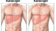 Karaciğer İltihabı: Semptomlar, Uygun Diyet