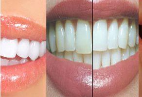 Karbonatla Dişleri Fırçalamanın Faydaları
