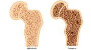 Kemik Erimesi İçin Şifalı Bitkiler, Kemik Erimesine İyi Gelen Yiyecekler