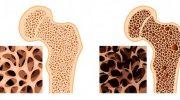 Kemik Erimesi (Osteoporoz) Nedir Öldürürmü Kemik Erimesi İlaçları Neler?
