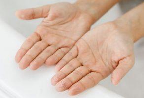 Ellerde kırışıklığa ne iyi gelir?