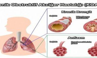 Kronik Osbtrüktif Akciğer Hastalığı (Koah)
