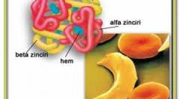 Orak Hücre Anemisi Nedir? Orak Hücre Hastalığı Nasıl Tedavi Edilir?