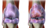 Osteoartrit (Kireçlenme) Nedir, Belirtileri, İlaçları ve Tedavisi