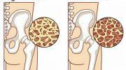 Kemik Erimesini Önlemeye Yardımcı 8 Gıda