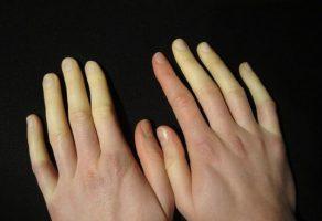 Raynaud Hastalığı: Belirtileri ve Tedavisi