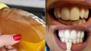 Evde Kendiniz Bu Doğal Yöntemle Dişlerinizi Bembeyaz Yapabilirsiniz