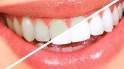 Sararmış Dişler İçin Doğal Çözüm Yolları