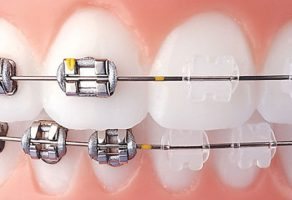 Ortodontik Tel Tedavisi