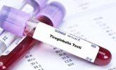 Tiroglobulin Nedir? Yüksekliği ve Düşüklüğü Neden Olur?