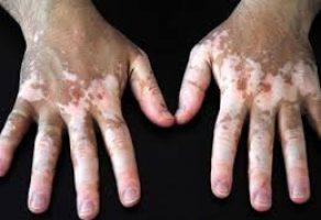 Vitiligo Hastalığı için Bitkisel Tedavi