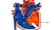 Çocuklarda Kalp Hastalıkları (ASD, VSD, PDA..)