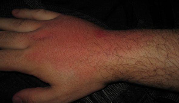 Yumuşak Doku Enfeksiyonu Nedenleri ve Tedavisi