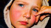 Yüzde Gül Hastalığı, Rozasea (Roza) Doğal Tedavisi İçin 5 Tarif