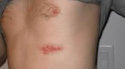 Zona Hastalığı Belirtileri ve Tedavisi